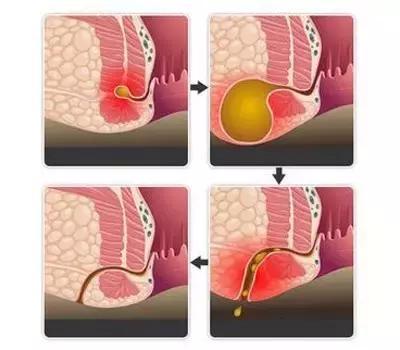 老是覺得肛門疼痛還有異物流出怎麼回事? - 每日頭條