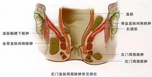 肛周膿腫久拖不治?你知道它的危害有多大嗎? - 每日頭條