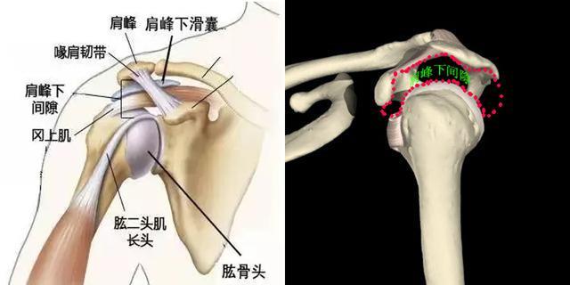 拯救肩痛:你了解肩峰下撞擊綜合徵嗎? - 每日頭條