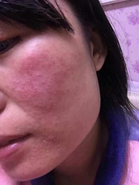 臉發紅、發燙、脫皮、起疹子等激素依賴性皮炎的癥狀危害有哪些? - 每日頭條