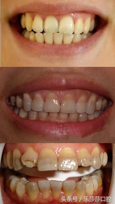 為什麼吃四環素牙齒會變黃? - 每日頭條