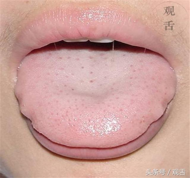 舌頭出現這種情況,竟是腎虛前兆,十人有九人還在做! - 每日頭條