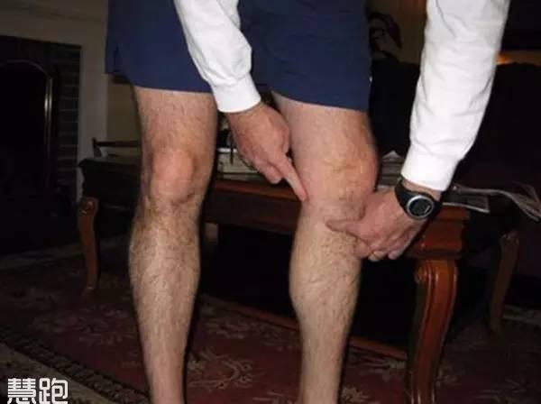 膝蓋內側痛怎麼辦?點進來就都知道了! - 每日頭條