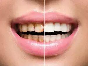 牙齒黃怎麼辦?這些美白牙齒的方法哪種最靠譜 - 每日頭條