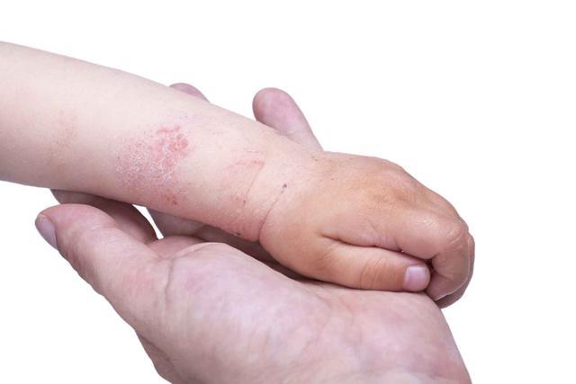 手指起水泡還特別癢?可能是被這個病纏上了,不難治療 - 每日頭條