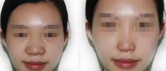 鼻翼寬縮小就行 鼻頭大必須做鼻綜合 - 每日頭條