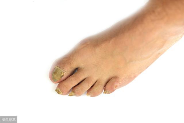 為什麼「腳氣」叫香港腳? - 每日頭條