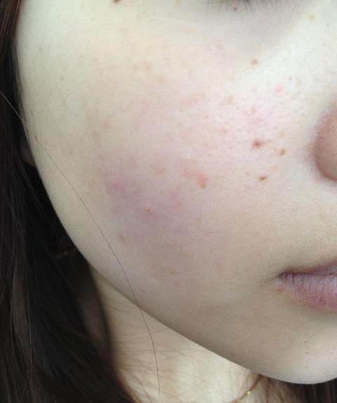 臉上8個部位長「痘」的原因,及針對性的治療方法 - 每日頭條