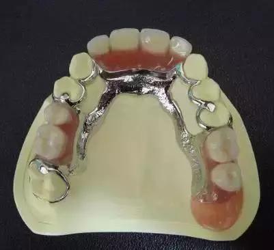 醫生。我只缺一顆牙。可以不管它嗎? - 每日頭條
