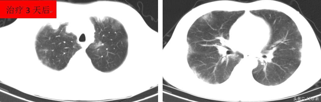 E診斷:間質性肺炎的影像診斷 - 每日頭條