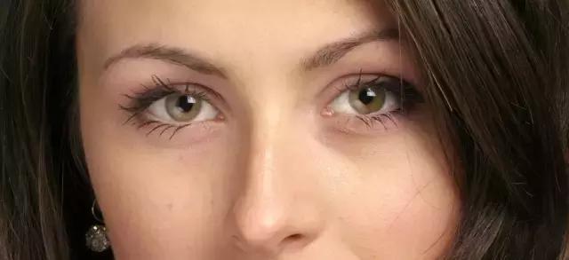 同樣都是割雙眼皮:為什麼有人恢復快。你的恢復慢? - 每日頭條