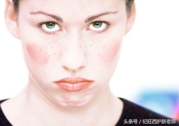 用什麼護膚品都過敏怎麼辦?反覆過敏算不算是激素臉 - 每日頭條