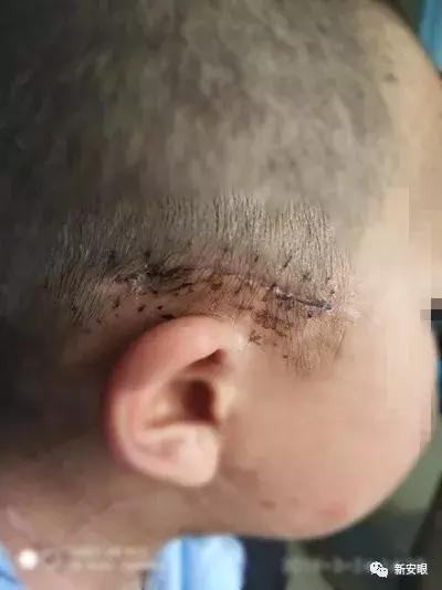 宣城一7歲男孩被狗咬傷 傷口深可見骨、差點沒命 - 每日頭條