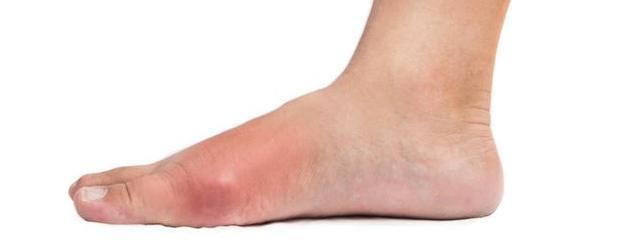 大腳趾疼痛,是痛風的首發癥狀,不以為意小心造成殘疾 - 每日頭條