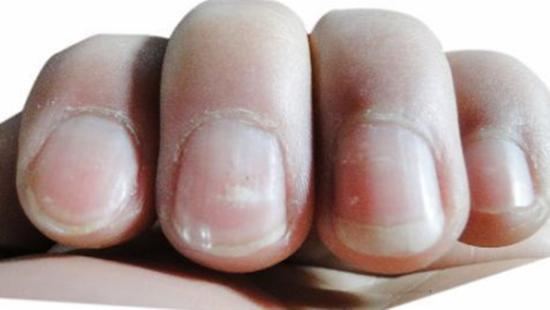 指甲上有白點吃什麼好?指甲上有白點是什麼原因? - 每日頭條