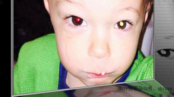 「照片里眼睛出現白光」能判斷癌癥 - 每日頭條