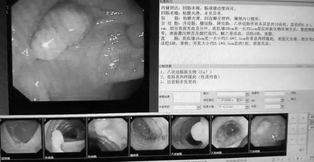昨天做了12個腸鏡:2例腸癌。6例腸息肉——腸鏡檢查。早做早受益 - 每日頭條