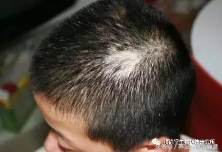 斑禿自己能長好嗎? - 每日頭條