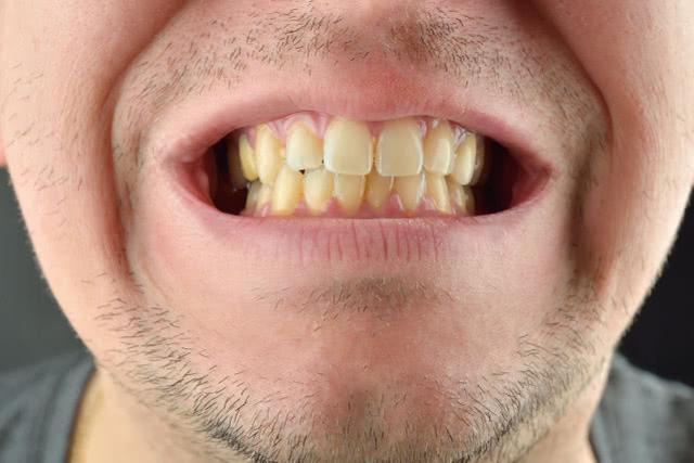 牙縫裡的牙結石又黃又臭?教你三個小方法。輕鬆除牙垢。清新口氣 - 每日頭條