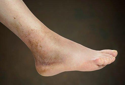 腳腫分原因,要是由這些原因造成,要及時就醫,以免錯過最佳治療 - 每日頭條