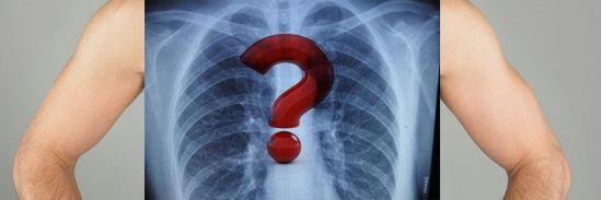 肺部小結節不一定意味著肺癌 - 每日頭條