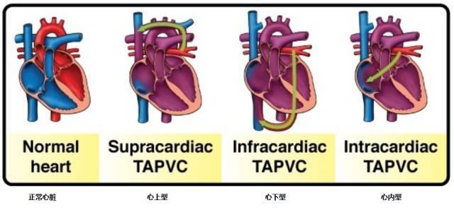 產科疑難超聲病例:完全性肺靜脈異位引流(心內型) - 每日頭條