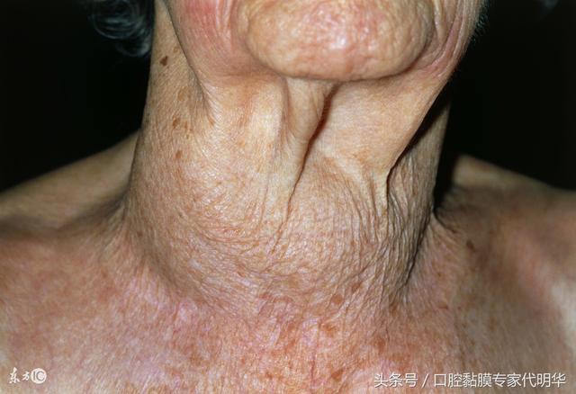 甲狀腺功能亢進癥最常見於哪些癥狀呢 - 每日頭條