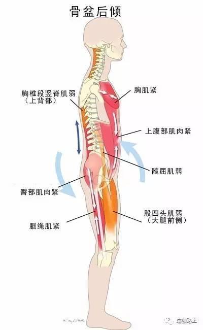 腰痛有4大原因。你是哪一個? - 每日頭條