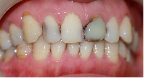 牙疼怎麼辦 牙疼藥最好使的三種藥 - 每日頭條
