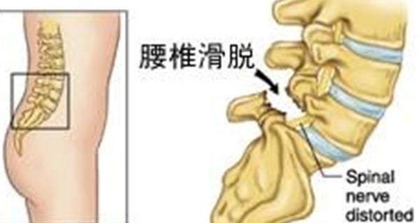 腰痛也可能是滑脫,這個要分真假,治療方案大不同 - 每日頭條