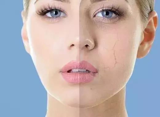 為什麼拍化妝水有刺痛感? - 每日頭條