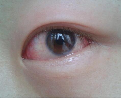 這個病很罕見。但早期癥狀誰都得過。反覆口腔潰瘍的人一定要注意 - 每日頭條