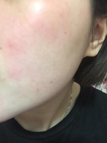 皮膚瘙癢疹子,是過敏還是激素依賴性皮炎 - 每日頭條
