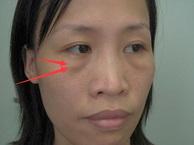 原來消除眼袋這麼簡單?不同眼袋的消除方法,讓你年輕10歲不止 - 每日頭條