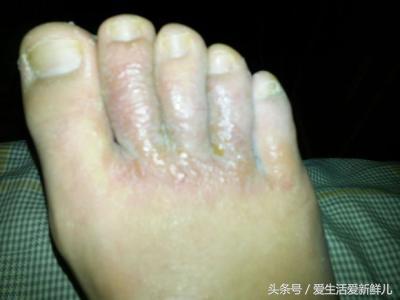 腳氣是什麼原因引起的?怎麼樣才能根治呢? - 每日頭條