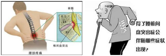 腰間盤突出壓迫坐骨神經,股神經,馬尾神經咋辦?如何防治腰椎病 - 每日頭條