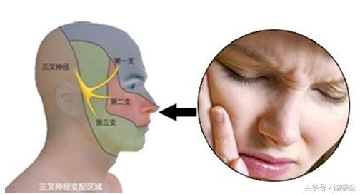 三叉神經痛為什麼容易誤診為牙痛? - 每日頭條
