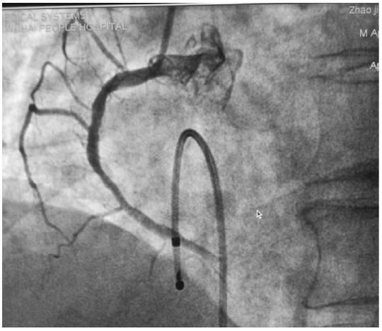 急診床旁臨時起搏器植入誤傷鎖骨下動脈成功處置一例 - 每日頭條