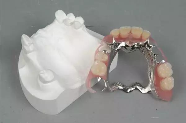 假牙究竟有何「缺點」的?看完你或許再也不想戴假牙! - 每日頭條