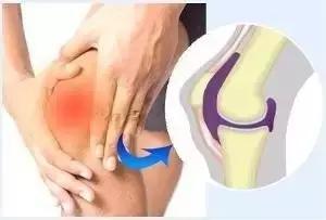 膝關節積液怎麼回事?全面的治療方案! - 每日頭條
