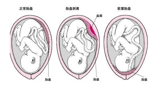 23周準媽媽胎盤前置陰道大量流血。早來的天使命運令人擔憂 - 每日頭條