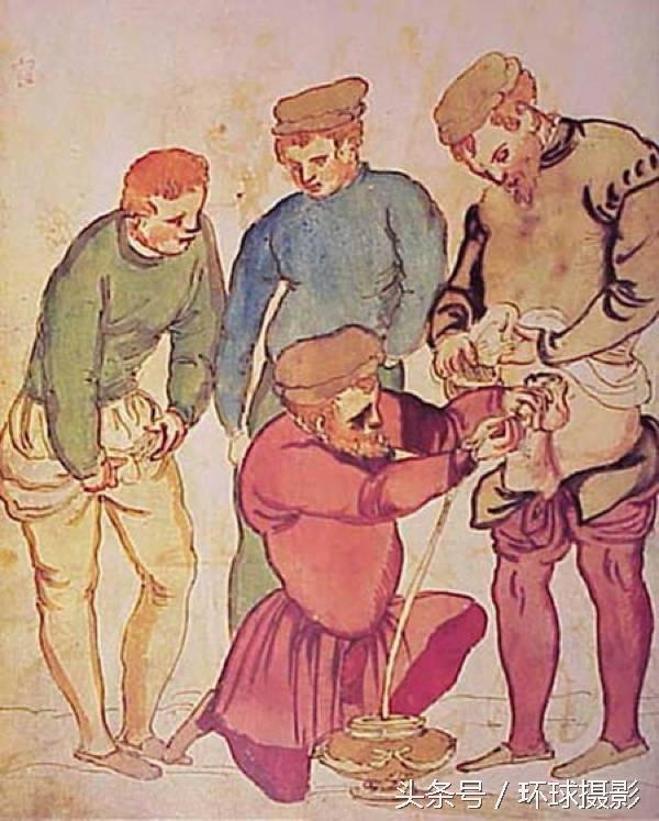 中古世紀的治療方式,看來我得感謝現在的醫生溫柔相待了 - 每日頭條