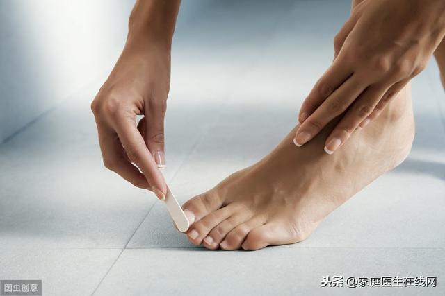 如何防止腳趾甲長肉里?注意這2點,防止嵌甲發生 - 每日頭條