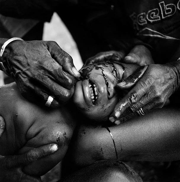非洲人的割禮 - 每日頭條
