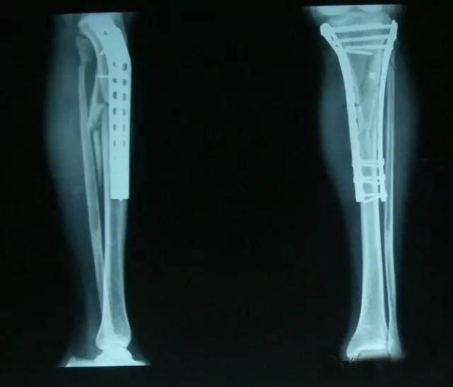 什麼是脛腓骨骨折?能康復嗎? - 每日頭條