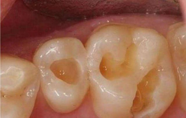 成年人也會有齲齒?幾種方法教你如何判斷自己是否有齲齒 - 每日頭條
