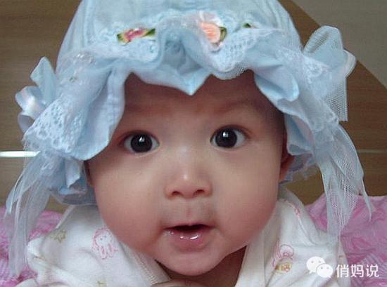 單眼皮寶寶多大能變成雙眼皮?誰的基因最重要? - 每日頭條