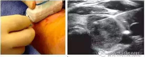 南陽市第一人民醫院開展超聲引導下甲狀腺結節細針穿刺細胞學檢查 - 每日頭條