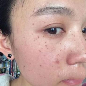 中醫世家幫我弄的它抹臉。皮膚白白嫩嫩。美白祛斑如除草 - 每日頭條