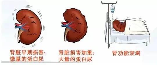 糖尿病走「腎」危害大,糖友走「心」要「腎」重 - 每日頭條
